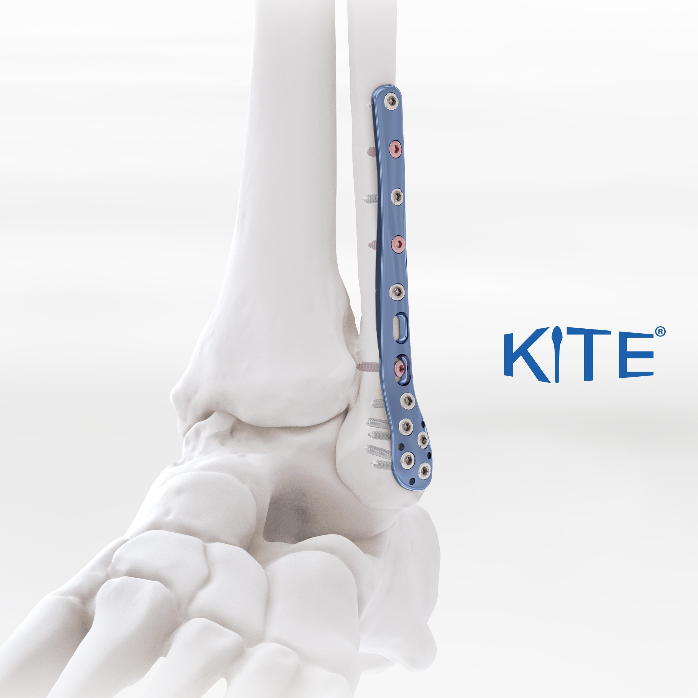 Kite anatomic