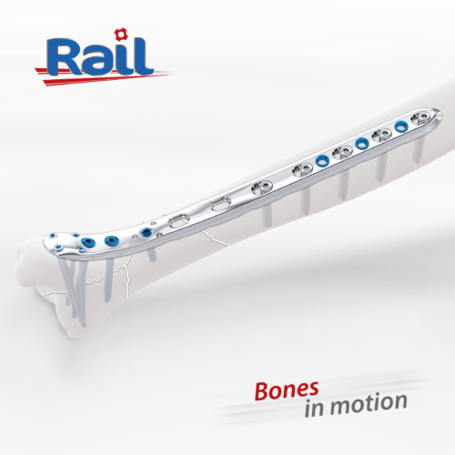 Rail tibia distale