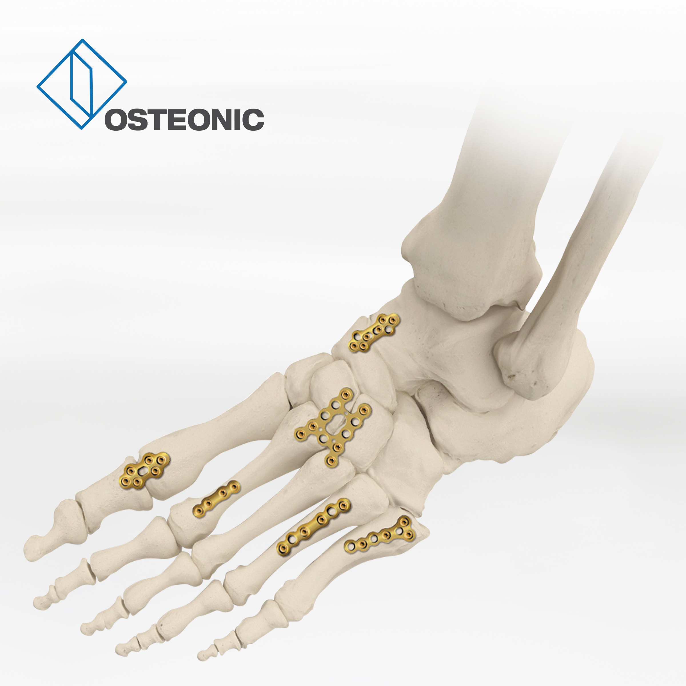 Osteonic piede